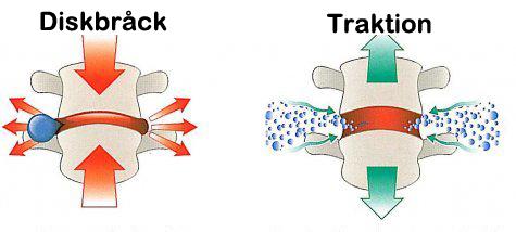 Traktion vid användning av ryggsträckare
